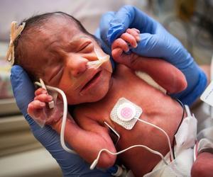 Crianças nasceram de 31,5 semanas; mãe estava internada desde o início de abril