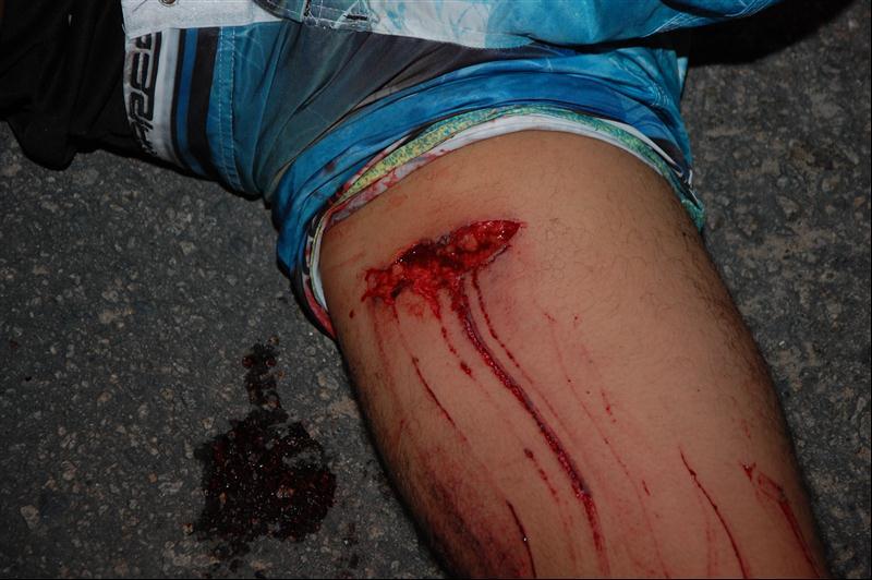 Jovem sofreu um corte profundo na perna direita.