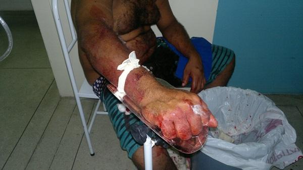 Vítima recebeu os primeiros atendimentos no hospital 24 horas.