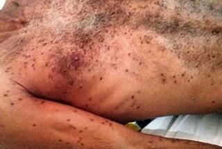 Homem morre após ser picado por abelhas em praça