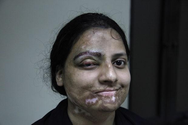 Foto divulgada pela Clínica Crown mostra uma das mulheres que passou por cirurgia após ser vítima de ataque de ácido no Paquistão (Foto: Shakil Adil/AP Images for Crown Clinic)