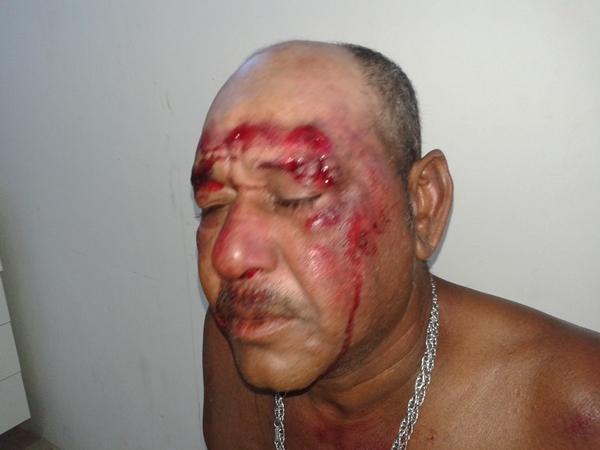 Vítima sofreu cortes na face e uma forte pancada na cabeça.