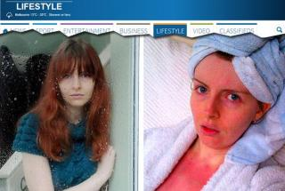 A britânica Rachel Price, 26 anos, é uma das 35 pessoas em todo o mundo que sofre de uma rara doença: ela é alérgica à água