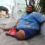 Obesidade é um obstáculo para que o jovem Marcos leve uma vida normal.
